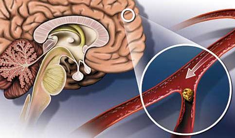 ateroskleroz-sosudov-golovnogo-mozga